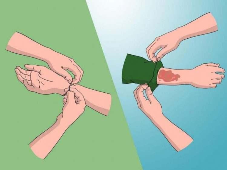 huong-dan-cach-xu-ly-khi-bi-bong-giat-dien-13
